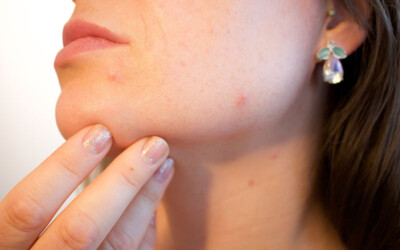 Acne Medication From Your Dermatologist